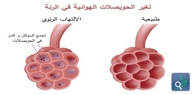 بالصور علاج مرض السل , اسباب و علاج السل 5793 1