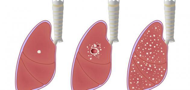 بالصور علاج مرض السل , اسباب و علاج السل 5793