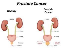صور اعراض البروستاتا , كل ما يخص البروستاتا