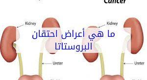 صورة اعراض البروستاتا , كل ما يخص البروستاتا