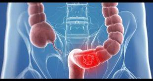 صورة اعراض سرطان القولون , تعرف علي اعراض سرطان القولون