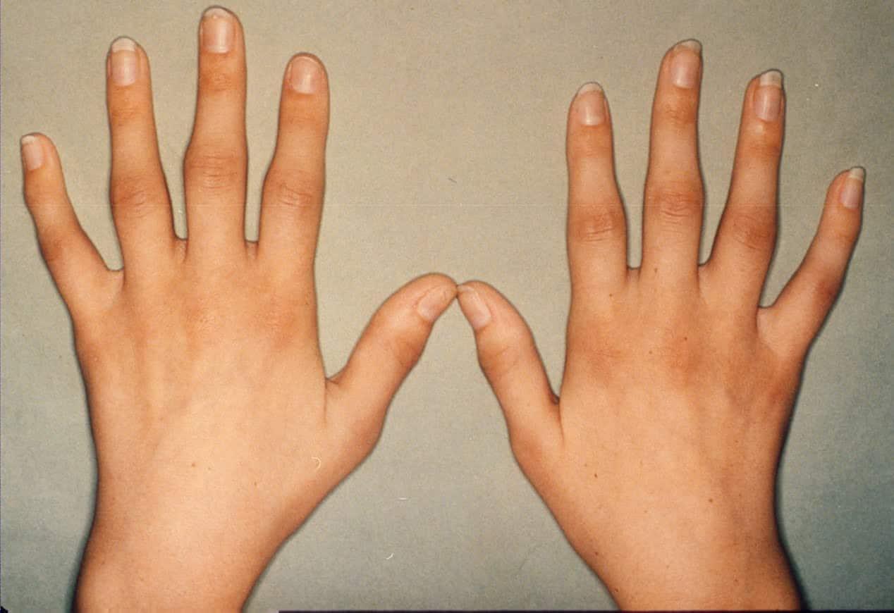 بالصور اعراض الروماتيزم , الاصابة بمرض الروماتيزم 1266 1