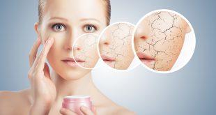 صورة علاج البشرة الجافة , طرق علاج البشرة للتى تتميز بالجفاف