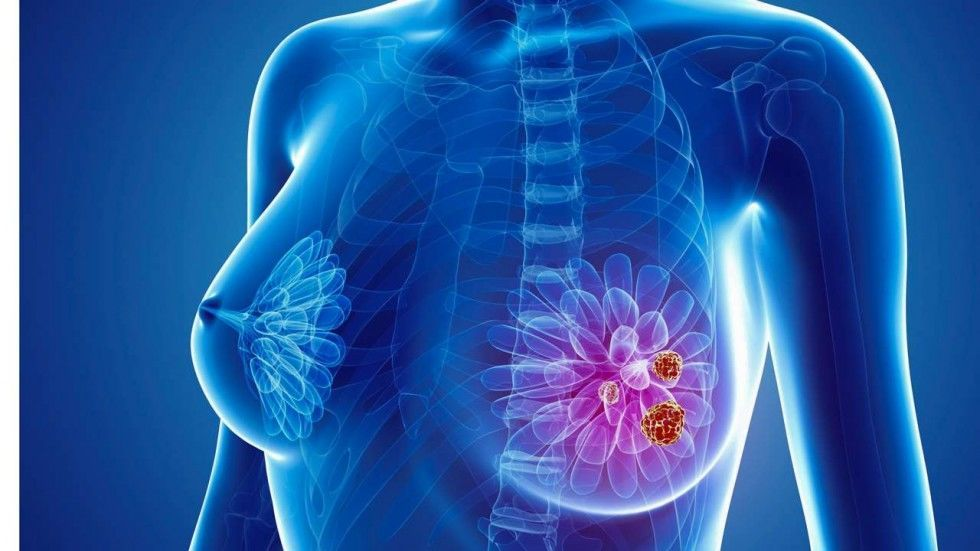 بالصور علاج سرطان الثدي , اطعمة تحارب السرطان 4397 2