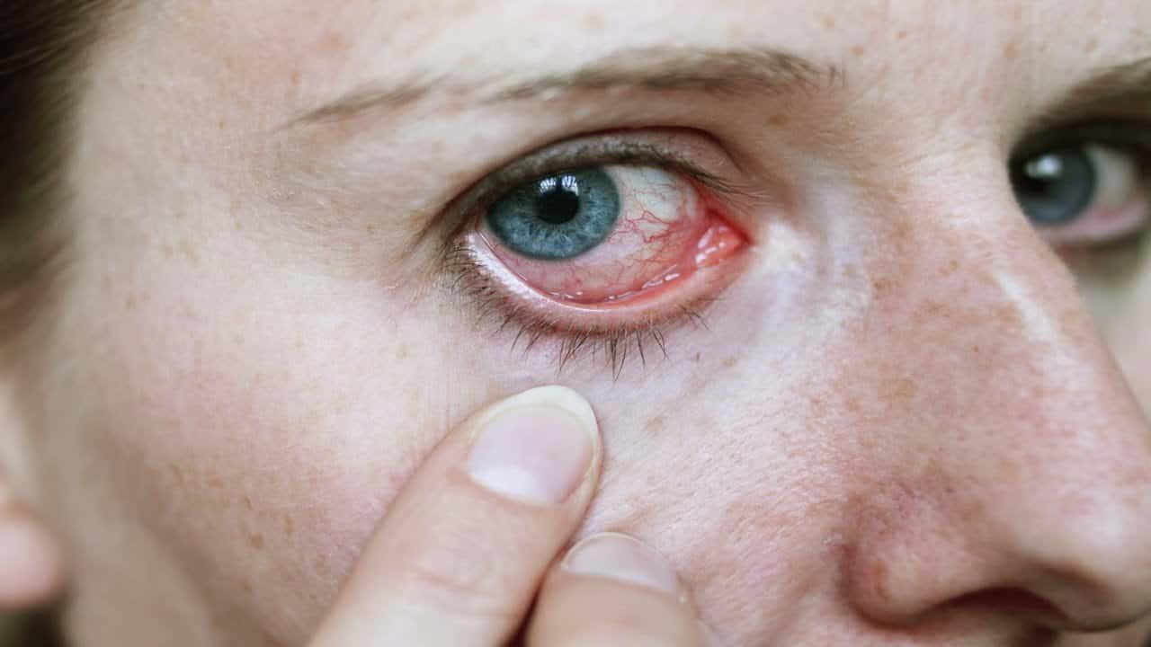 صورة علاج حساسية العين , ابسط واسرع علاج لحساسية العين بشكل نهائى