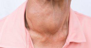 صور مرض الغدة الدرقية , امراض الغدة الدرقية واعراضها وكيفية علاجها