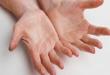 صور علاج الاعصاب , ما هو علاج التهاب الاعصاب