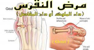 صورة مرض النقرس , اعراض مرض النقرس وعلاجه