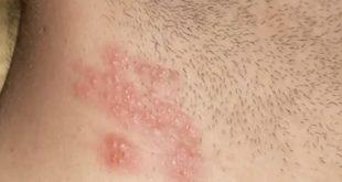 صور مرض الهربس , اعراض مرض الهربس وعلاجه