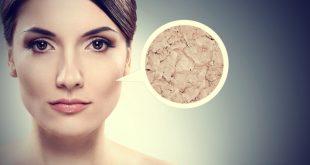 بالصور علاج البشرة الدهنية , طرق طرق للعنايه وعلاج للبشره الدهنيه 2992 3 310x165
