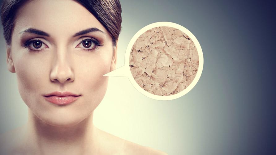 صورة علاج البشرة الدهنية , طرق طرق للعنايه وعلاج للبشره الدهنيه