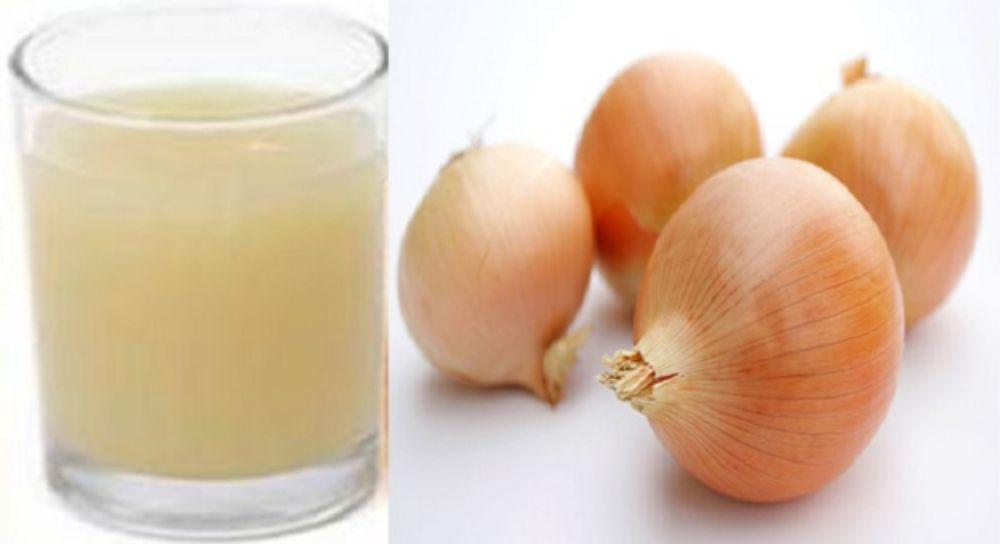 بالصور فوائد البصل , اهم واعظم فوائد البصل لجسم الانسان 5552 5