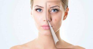 صور ازالة حبوب الوجه , افضل الخلطات الطبيعيه للتخلص من حبوب الوجه بالمنزل