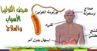 صور مرض الكوليرا , احذر هذا المرض الخطير واعرف اسبابه واعراضه