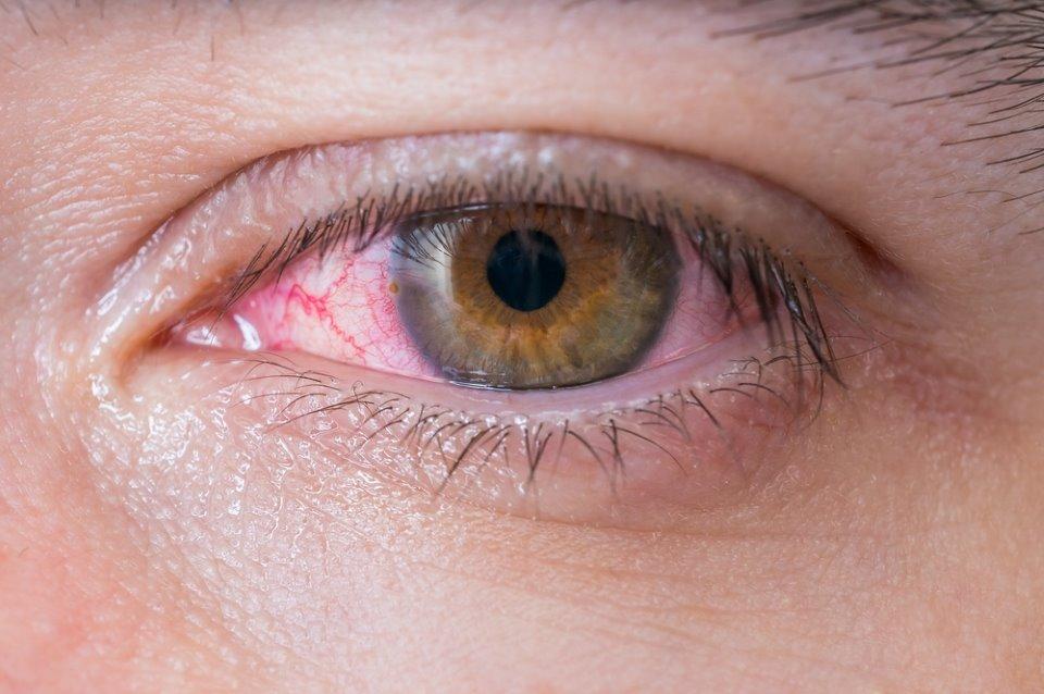 صورة العين الحمراء , اذا تعرضت عيناك للاحمرار لا تستهون بها