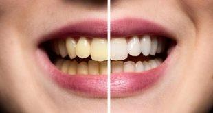 بالصور كيفية تبييض الاسنان , اروع الوصفات الطبيعيه لاسنان بيضاء 652 3 310x165