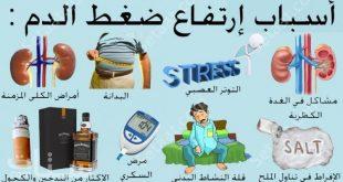 بالصور علاج ارتفاع ضغط الدم , اعراض وعلاج مرض ضغط الدم المرتفع 1303 10 310x165