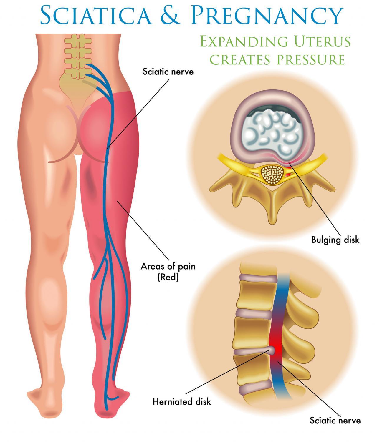 صورة علاج ضغط فقرات الظهر على العصب , علاج مرض الديسك