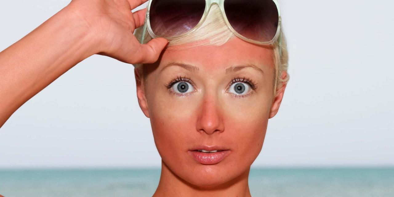 بالصور علاج حساسية الوجه من الشمس , كيفية العلاج لحساسية الوجه 12267 2