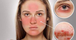 صور علاج حساسية الوجه من الشمس , كيفية العلاج لحساسية الوجه