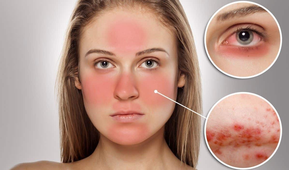 بالصور علاج حساسية الوجه من الشمس , كيفية العلاج لحساسية الوجه 12267