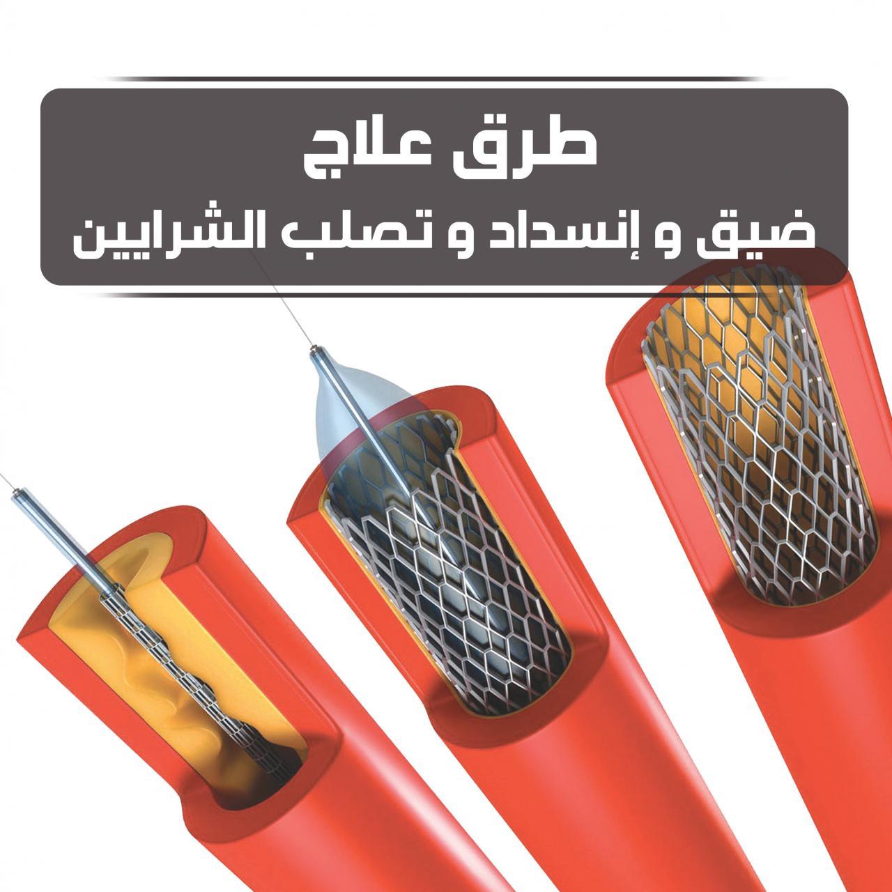 بالصور علاج تصلب الشرايين , افضل علاج مرض تصلب او انسداد الشرايين 12287 2