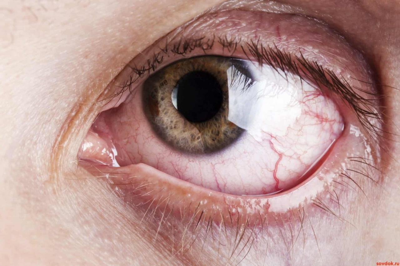 صورة ما هي القرنيه , وما الامراض التى تصيبها