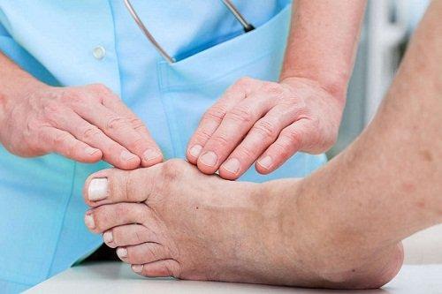 بالصور علاج النقرس , التخلص من الم النقرس 6476