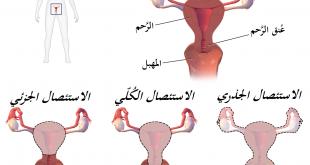 صورة الرحم بعد الولادة بالصور , ماذا يحدث في الداخل