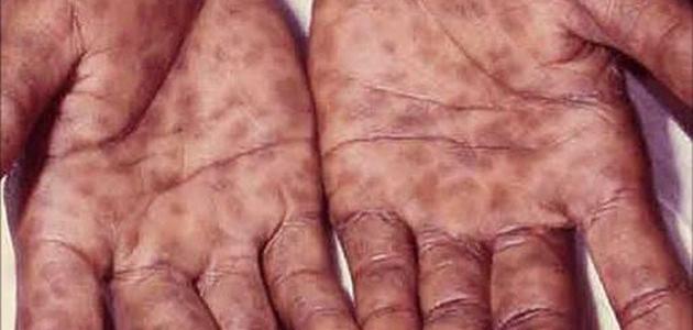 صورة كيف ينتقل مرض الزهري , ازاي ينتقل الزهري ومدة علاجه وازاي نقي منها