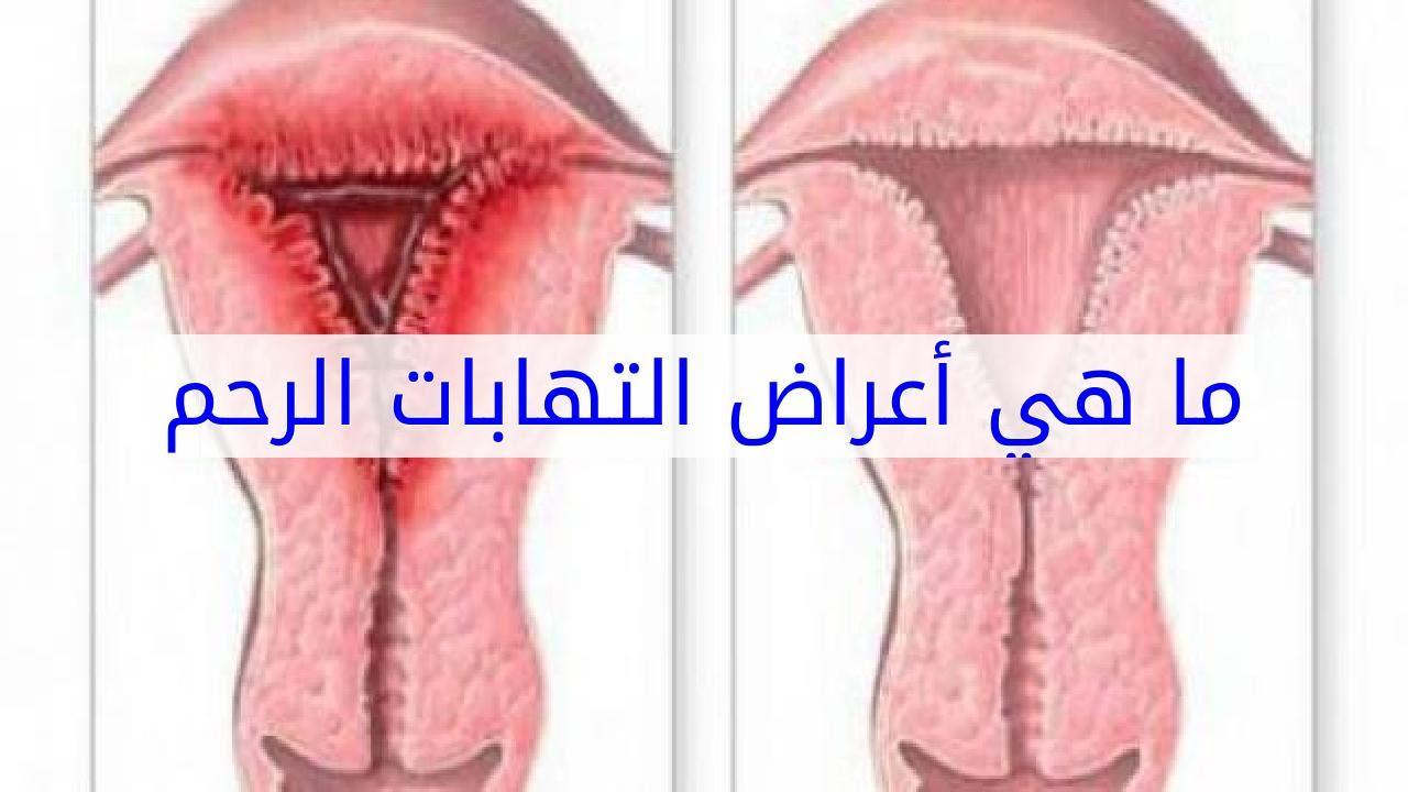 صورة حبة في عنق الرحم , اعراض التهابات عنق الرحم
