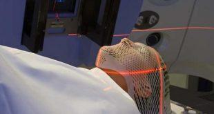 صورة علاج سرطان المخ , احدث علاجات الاورام