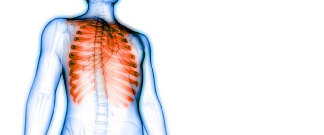 صورة الم عظام القفص الصدري , اسباب الام القفص الصدري