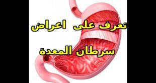 صورة اعراض سرطان المعدة , اشهر علامات مرض السرطان