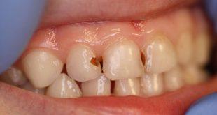 صورة سحر ياربي لعلاج الاسنان ,علاج تسوس الاسنان