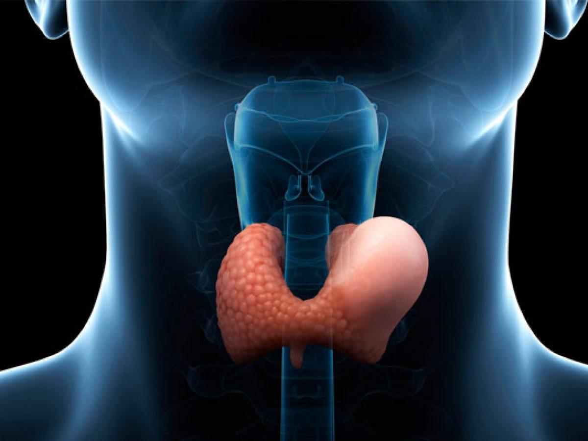 اعراض التهاب الغدة الدرقية تحت الحاد - رمزيات