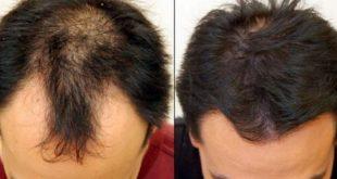 صورة علاج تساقط الشعر للرجال 954 2 310x165